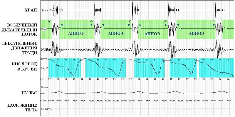 апноэ и пульс