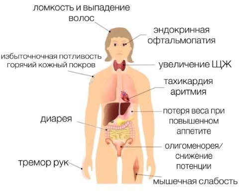 симптомы гипертиреоза у человека