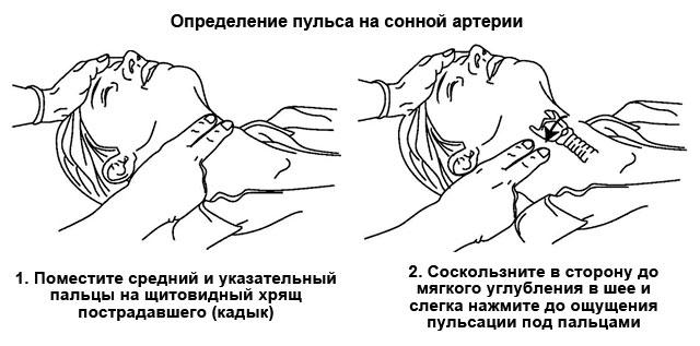 измерение пульса на сонной артерии