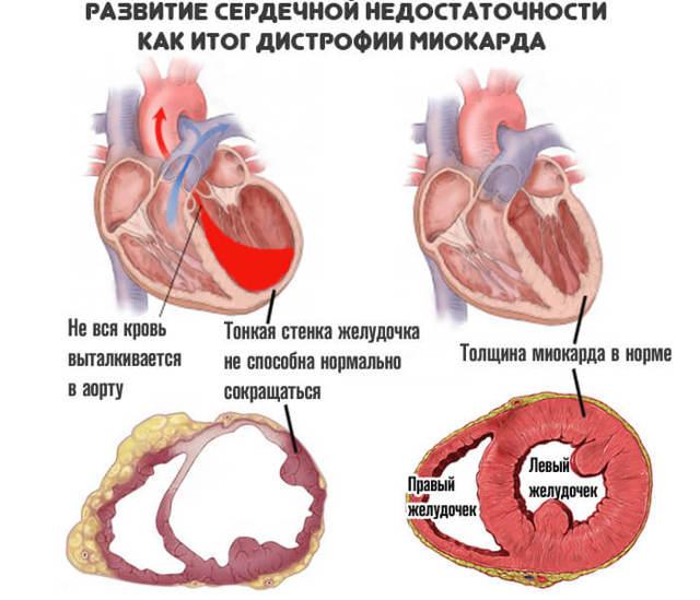 сердечные причины тахикардии