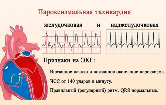 пароксизмальной тахикардии