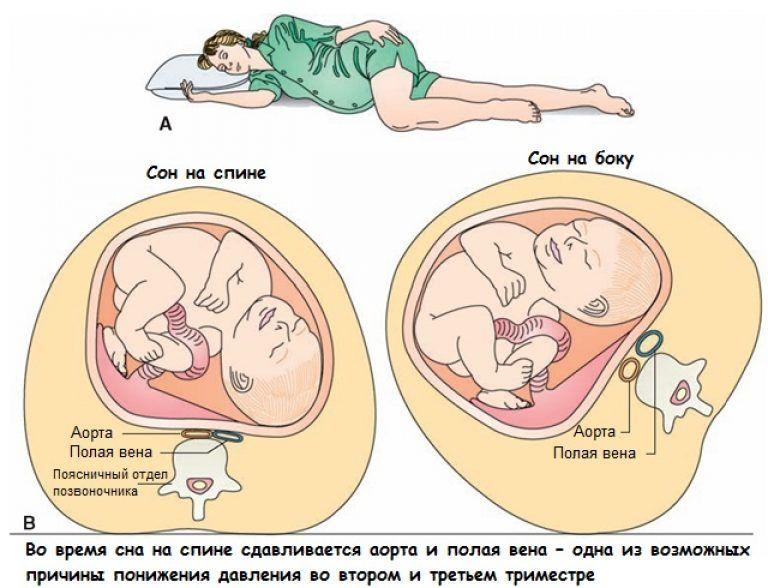 причины тахикардии при беременности