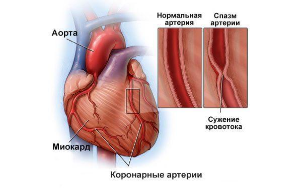 механизм развития стенокардии