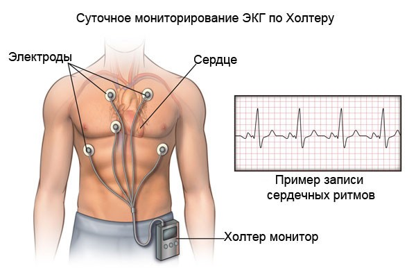 диагностика нарушения ЧСС