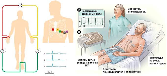Снятие ЭКГ у больного при высоком чсс