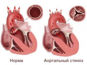 порок сердца приводящий к брадикардии