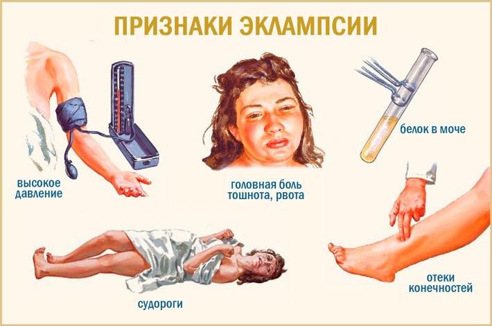 симптомы эклампсии