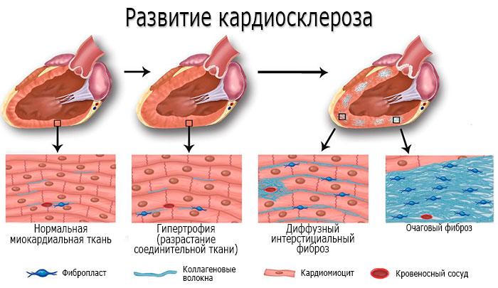 брадикардия при кардиосклерозе