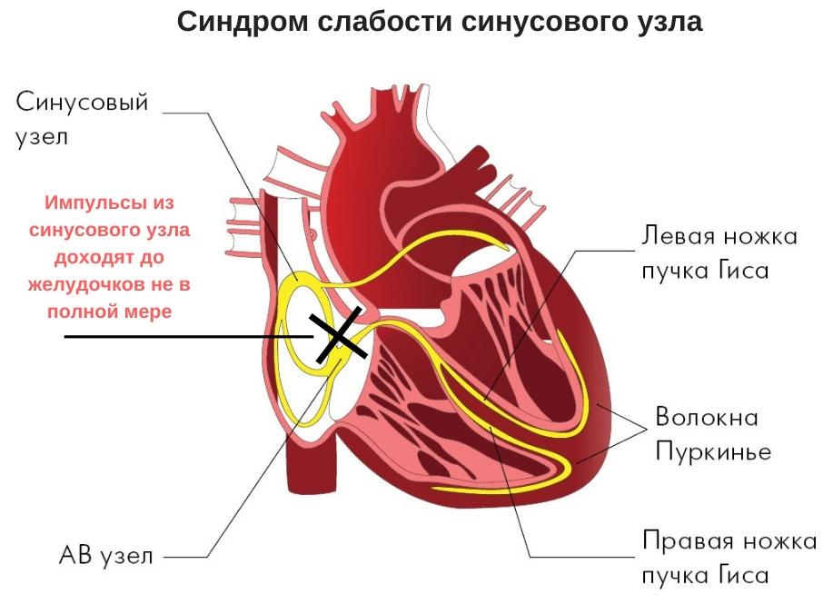 причины низкого пульса