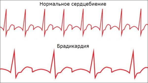 брадикардия схема