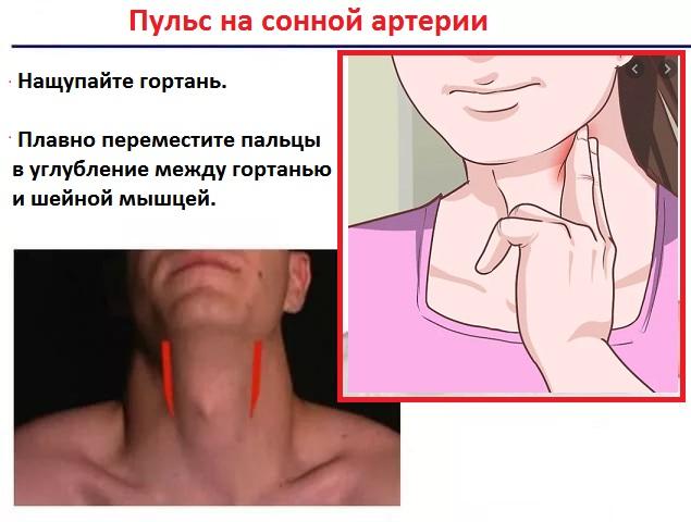 как померять пульс на сонной артерии