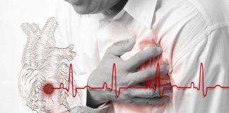 пульс при инфаркте