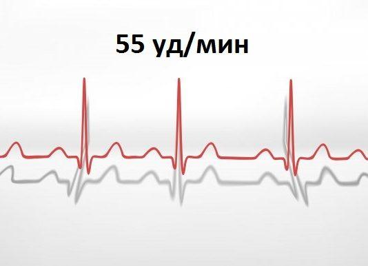 пульс 55 ударов в минуту у женщин