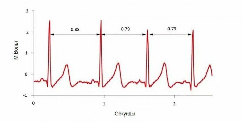 вариабельность пульса схема