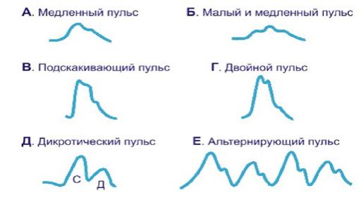 виды пульса