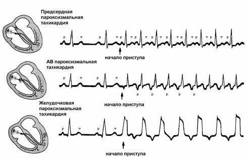 Пароксизмальная желудочковая тахикардия